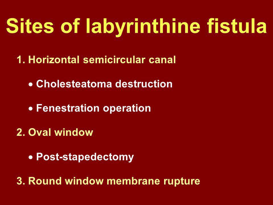 Sites of labyrinthine fistula