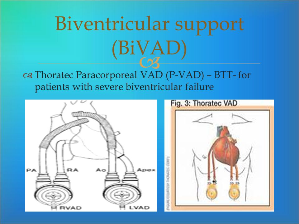 Biventricular support (BiVAD)