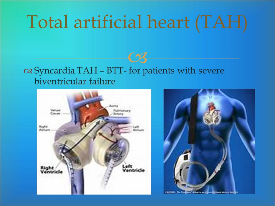 Total artificial heart (TAH)