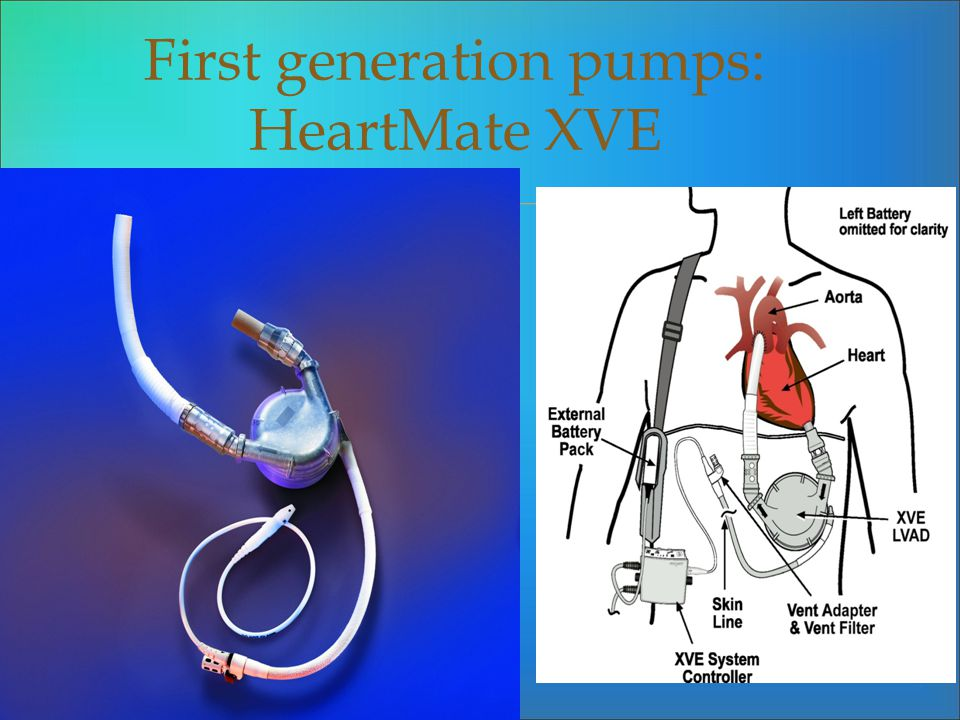 First generation pumps: HeartMate XVE