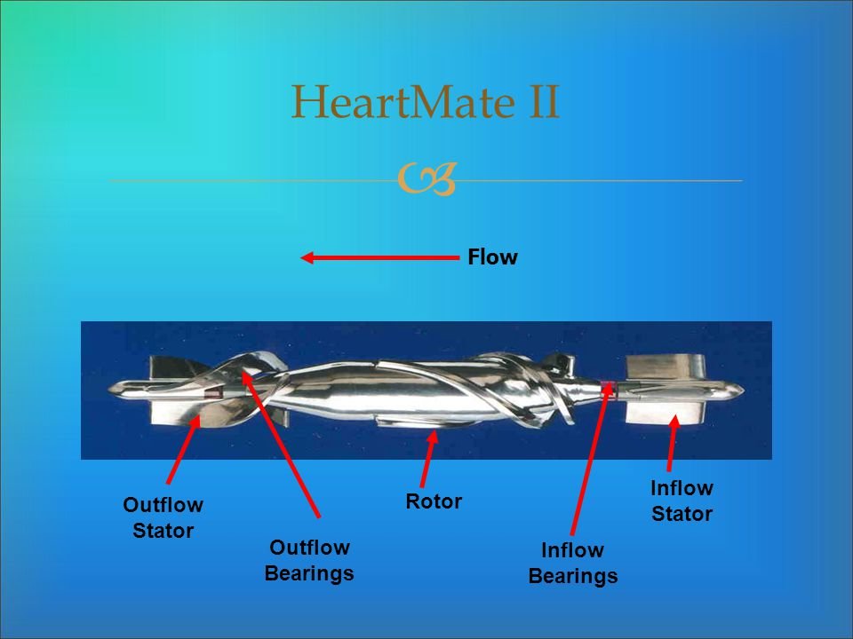 HeartMate II Flow Inflow Stator Rotor Outflow Stator Outflow Bearings