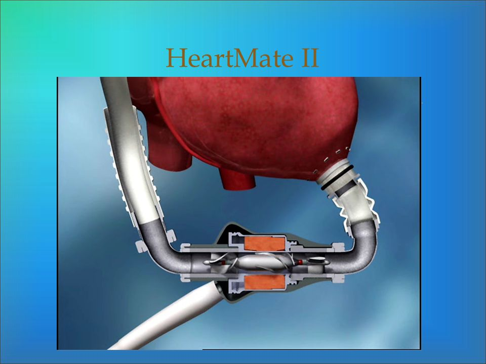 HeartMate II
