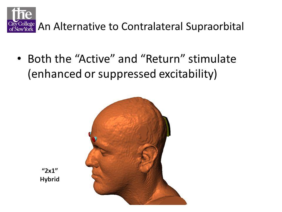 An Alternative to Contralateral Supraorbital