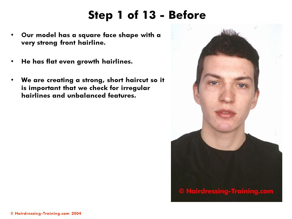 Step 1 of 13 - Before Our model has a square face shape with a very strong front hairline. He has flat even growth hairlines.