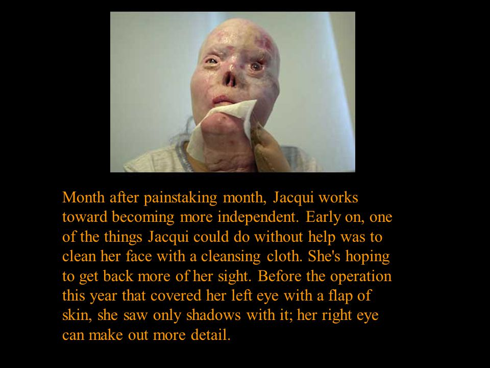 Month after painstaking month, Jacqui works toward becoming more independent.