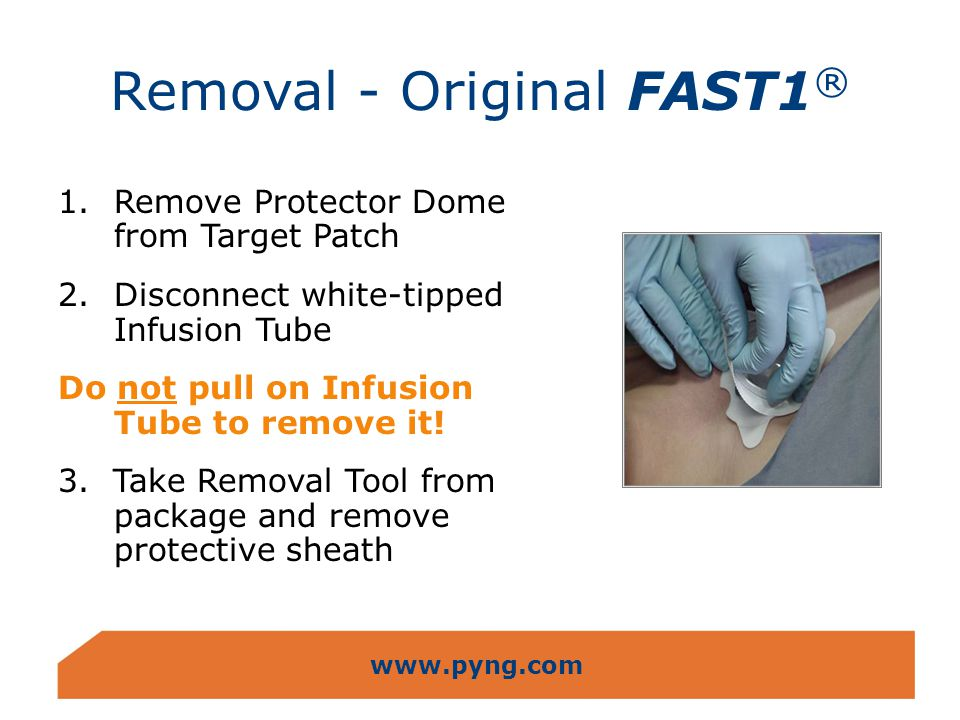 Removal - Original FAST1®