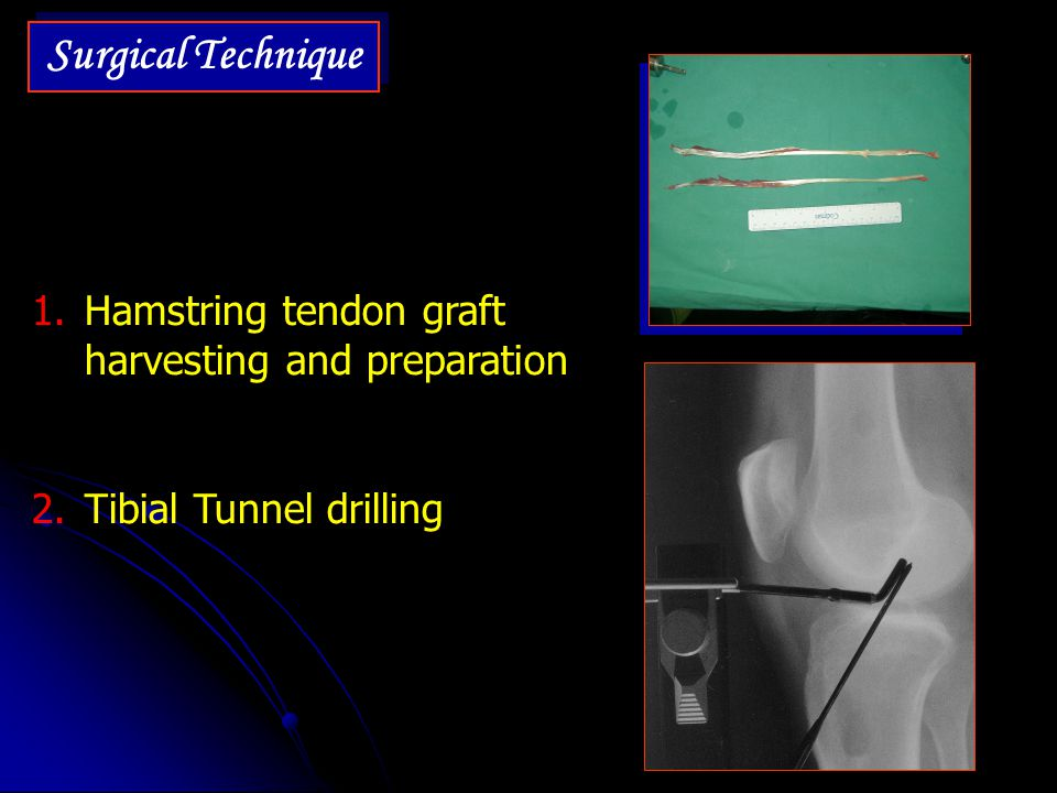 Surgical Technique Hamstring tendon graft harvesting and preparation