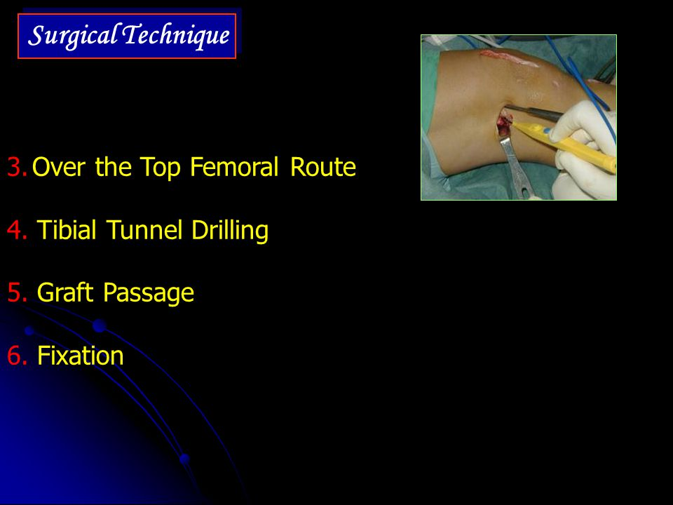 Surgical Technique Over the Top Femoral Route