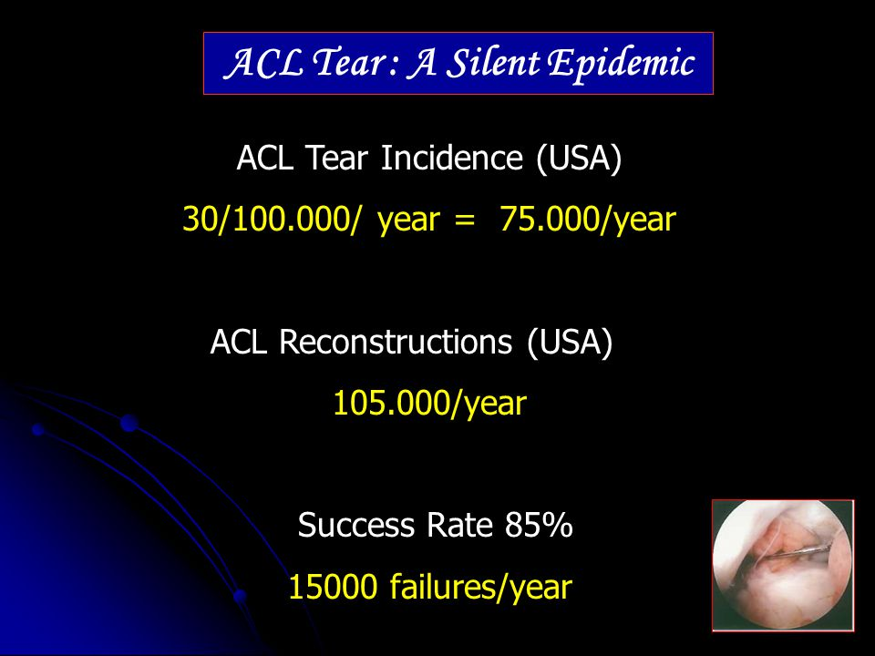 ACL Tear : A Silent Epidemic