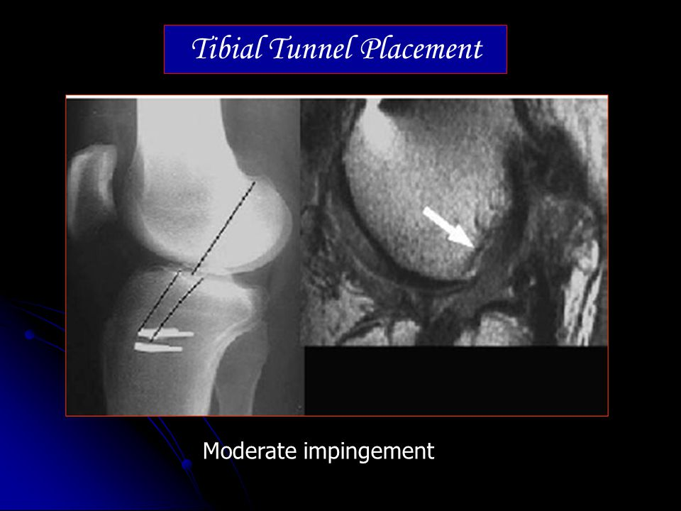 Tibial Tunnel Placement