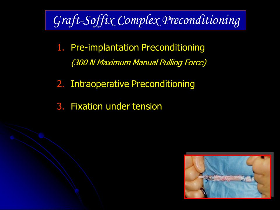 Graft-Soffix Complex Preconditioning