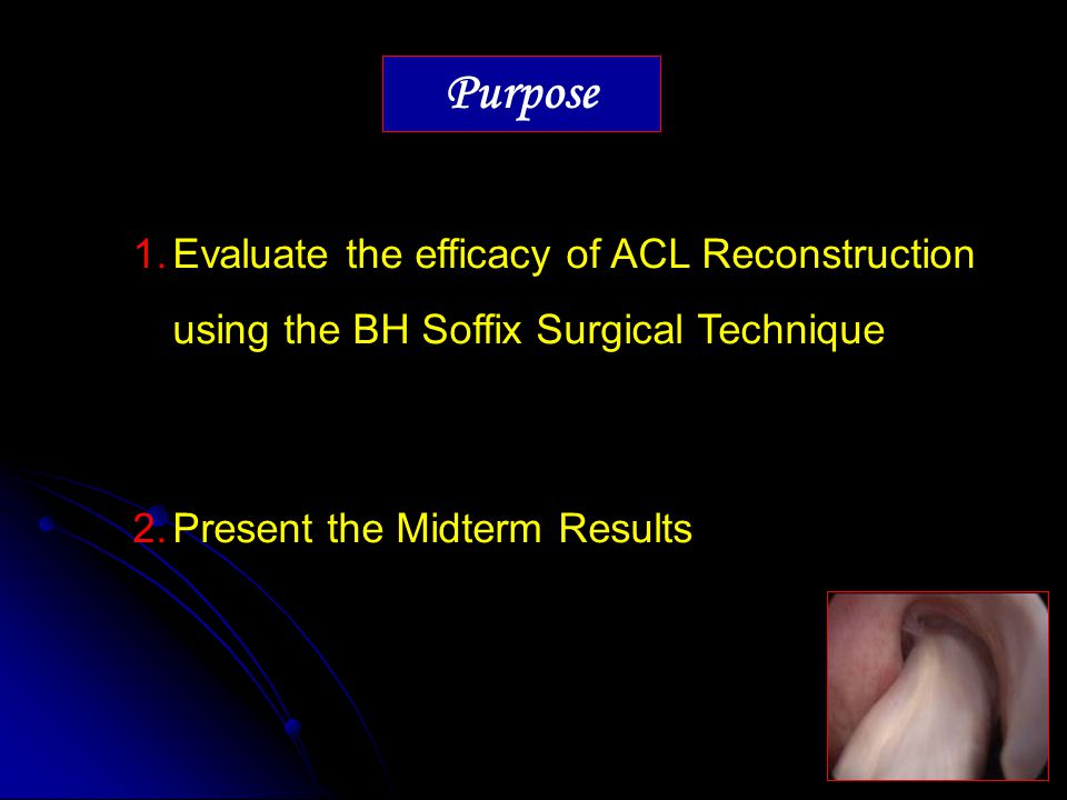 Purpose Evaluate the efficacy of ACL Reconstruction using the BH Soffix Surgical Technique.