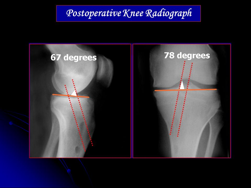 Postoperative Knee Radiograph