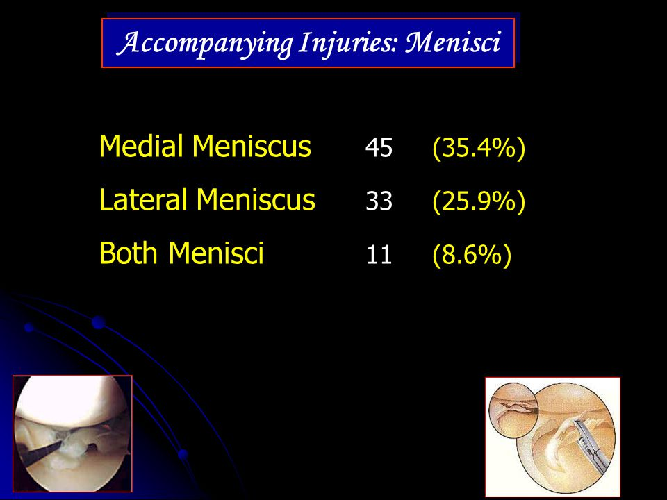 Accompanying Injuries: Menisci