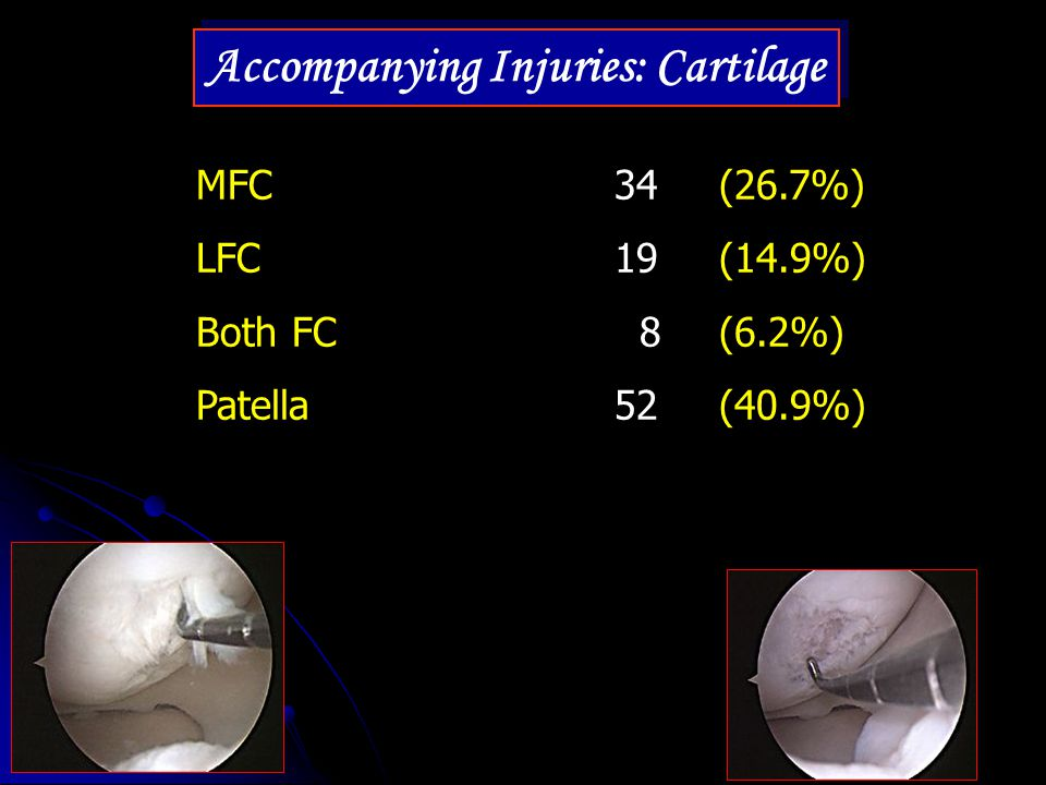 Accompanying Injuries: Cartilage