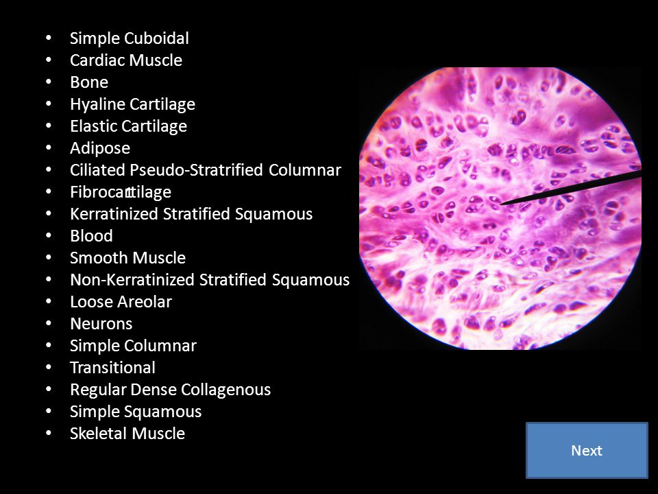 Ciliated Pseudo-Stratrified Columnar Fibrocartilage
