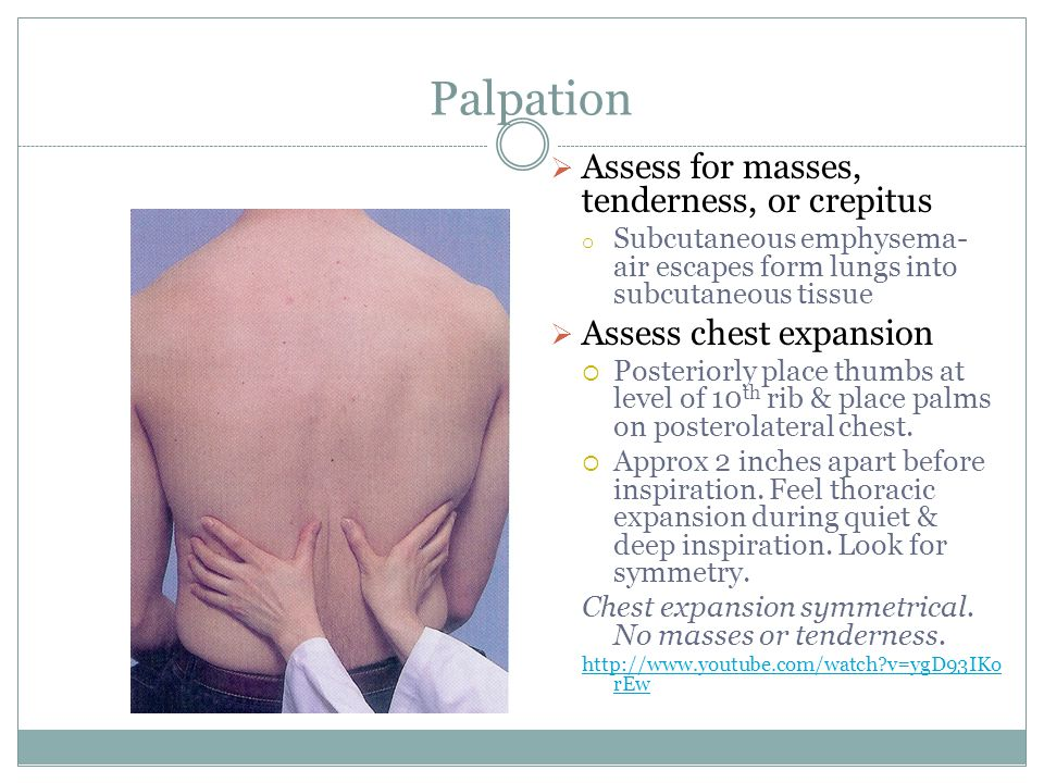 Palpation Assess for masses, tenderness, or crepitus