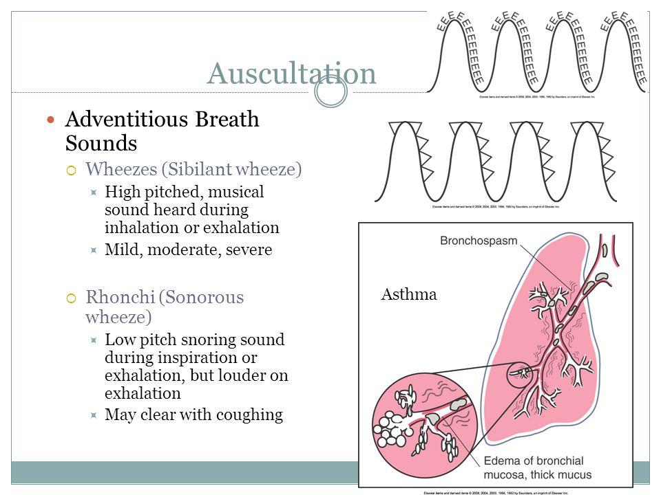 Auscultation Adventitious Breath Sounds Wheezes (Sibilant wheeze)