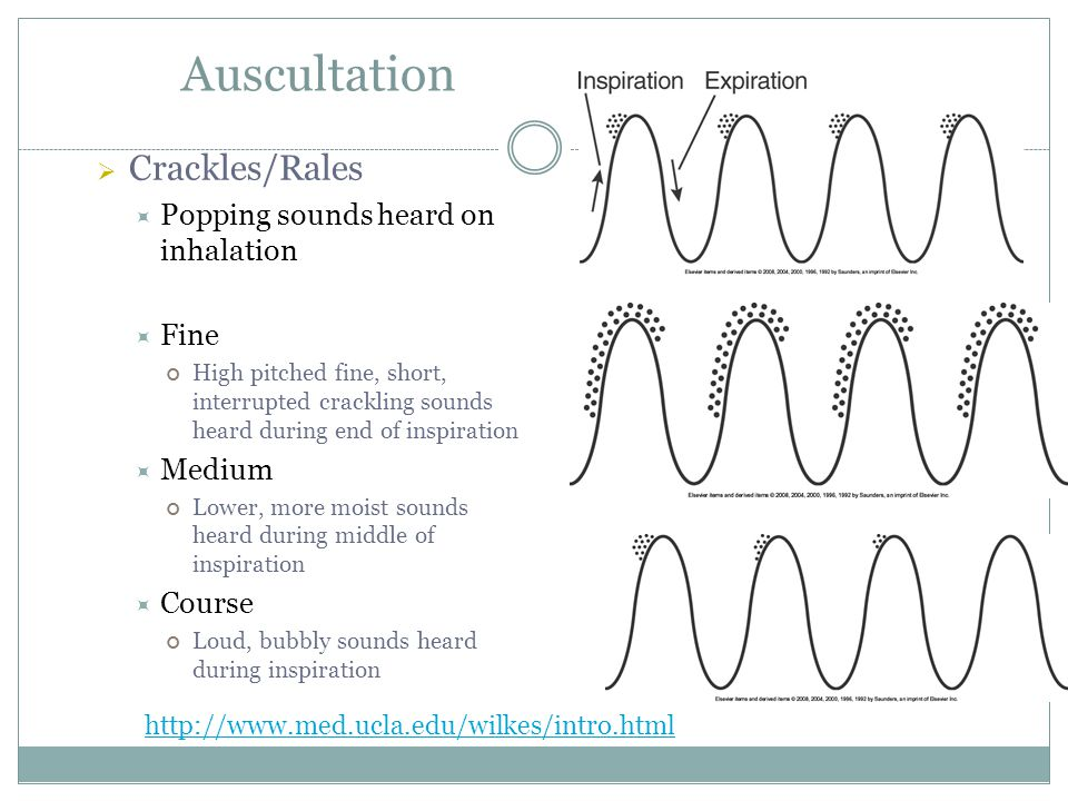 Auscultation Crackles/Rales Popping sounds heard on inhalation Fine