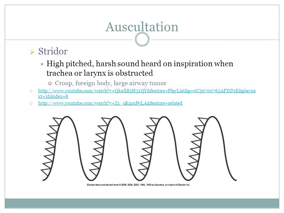 Auscultation Stridor. High pitched, harsh sound heard on inspiration when trachea or larynx is obstructed.