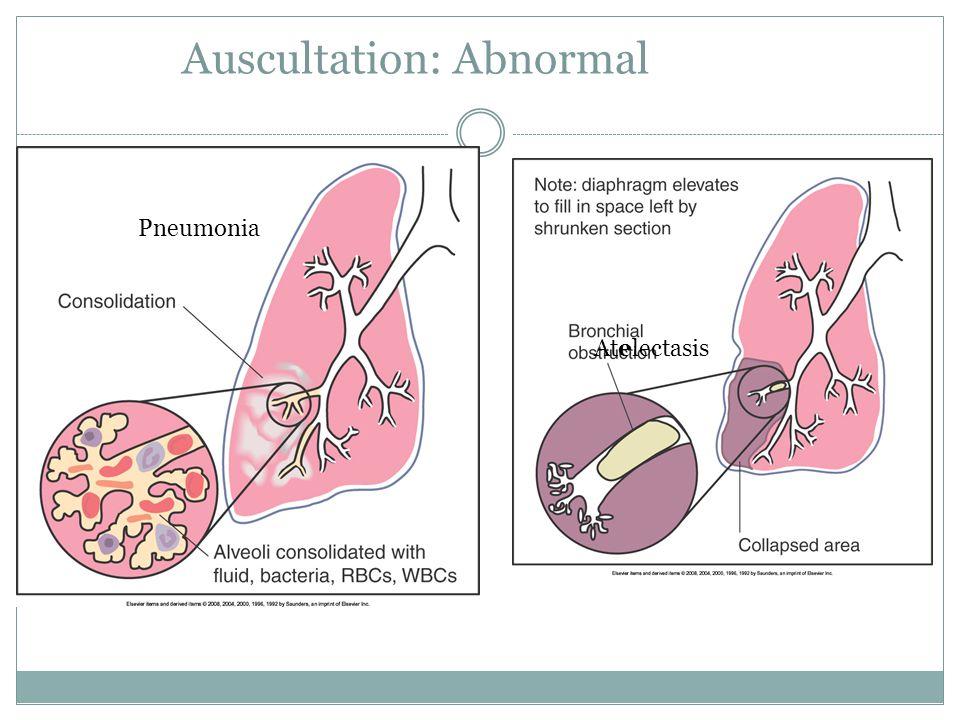 Auscultation: Abnormal