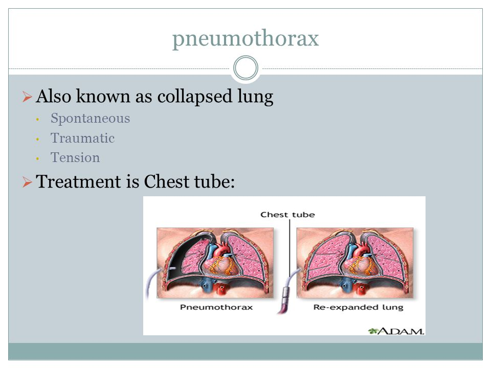 pneumothorax Also known as collapsed lung Treatment is Chest tube: