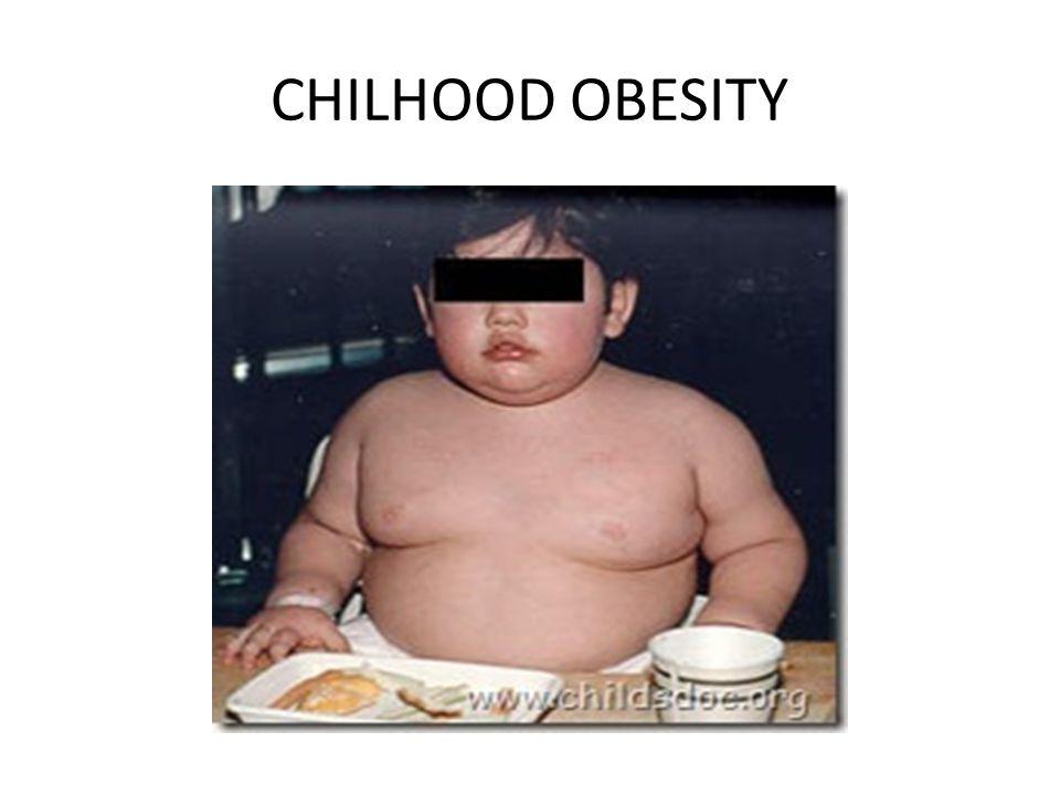 CHILHOOD OBESITY