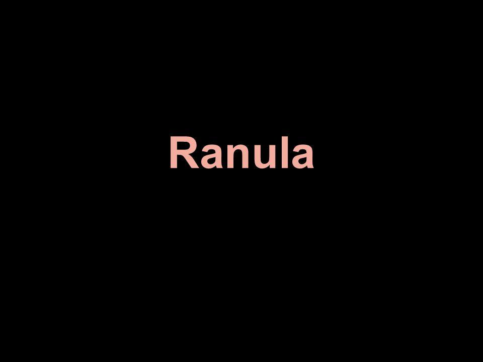 Ranula