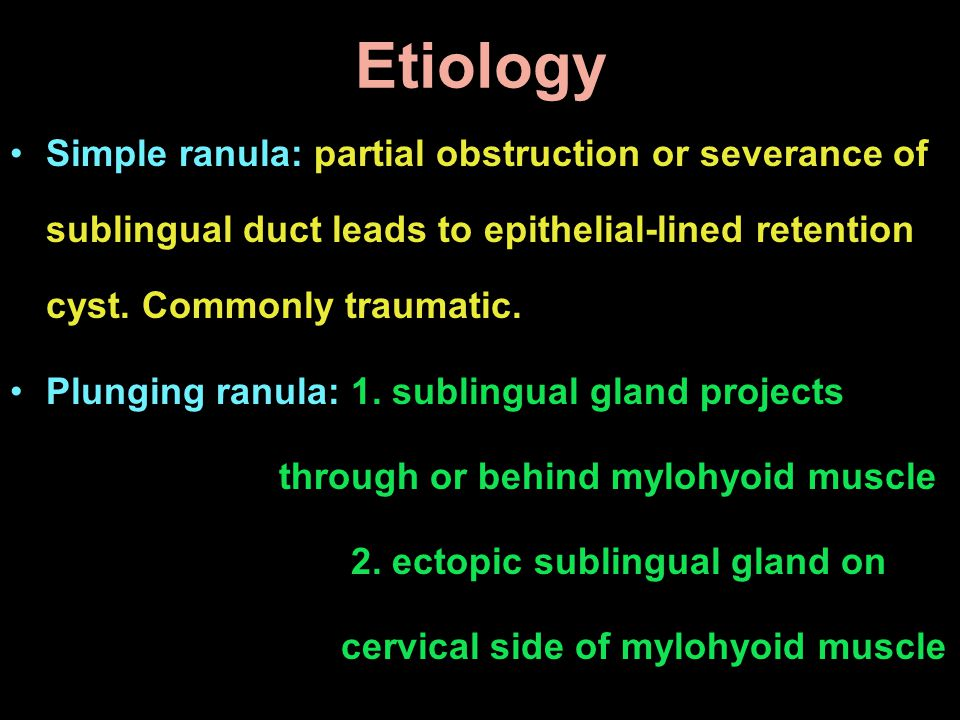 Etiology Simple ranula: partial obstruction or severance of sublingual duct leads to epithelial-lined retention cyst. Commonly traumatic.