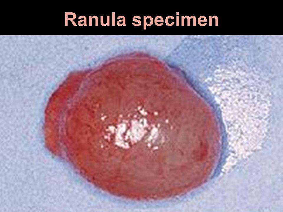 Ranula specimen