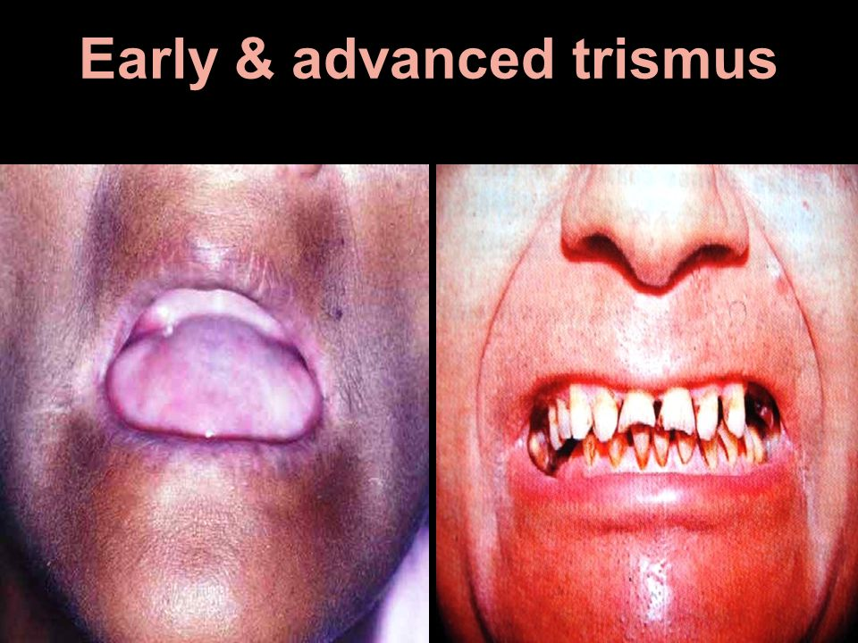 Early & advanced trismus
