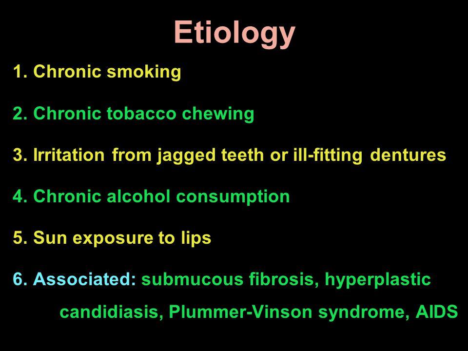 Etiology Chronic smoking Chronic tobacco chewing