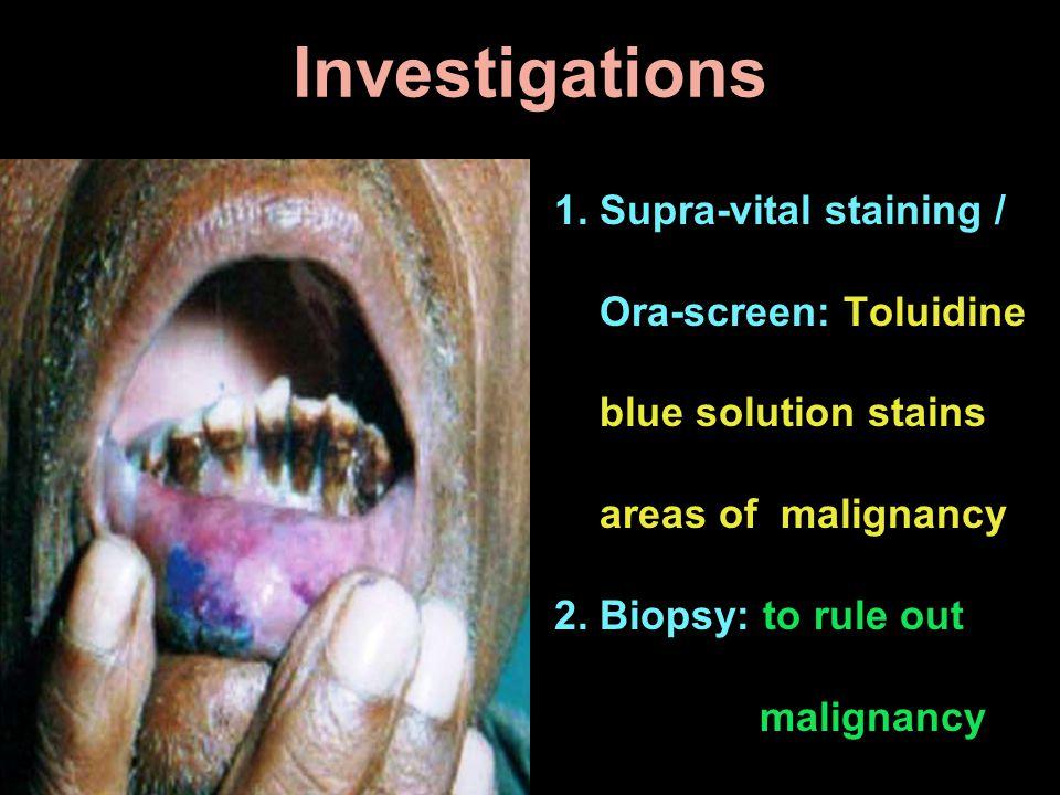 Investigations 1. Supra-vital staining / Ora-screen: Toluidine