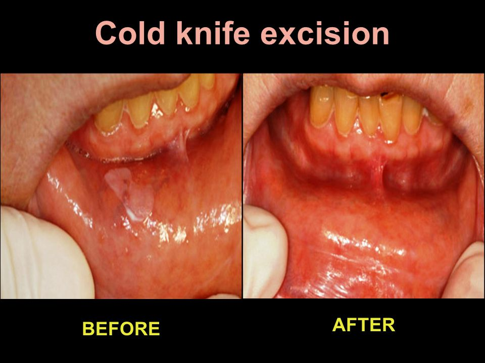 Cold knife excision AFTER BEFORE