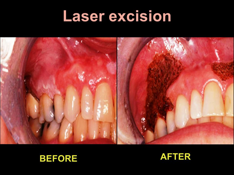 Laser excision AFTER BEFORE