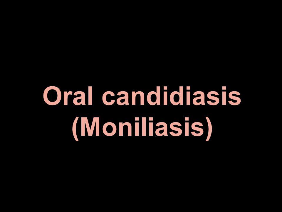Oral candidiasis (Moniliasis)