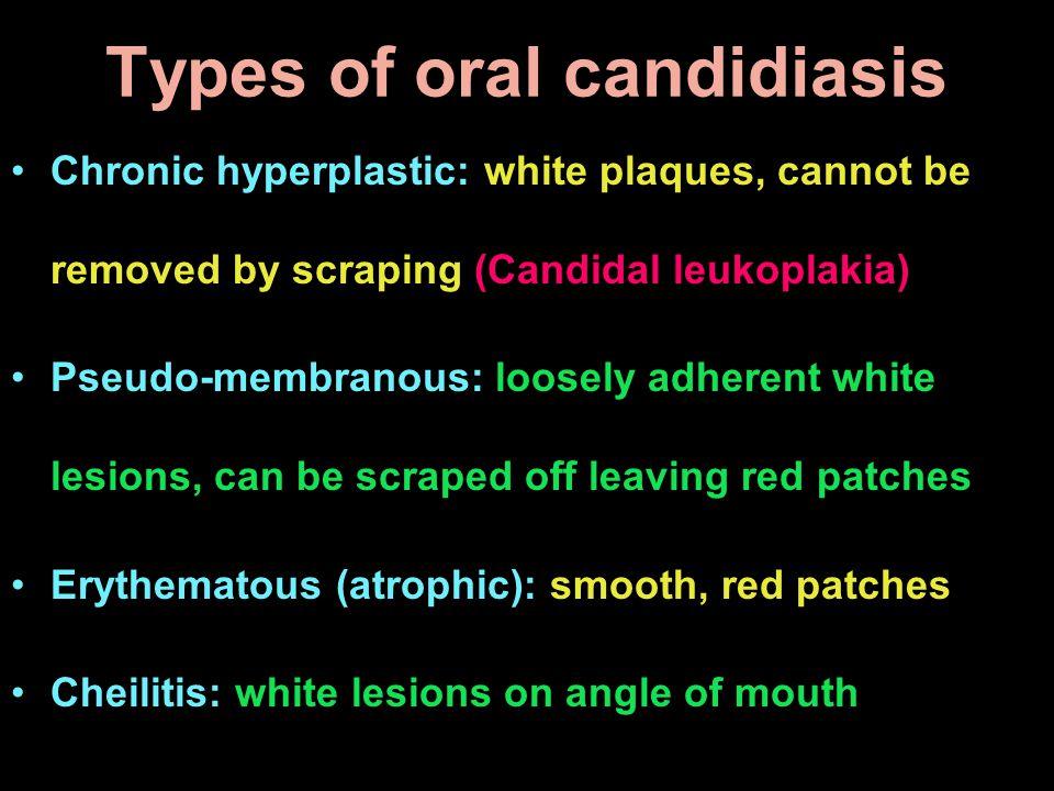 Types of oral candidiasis