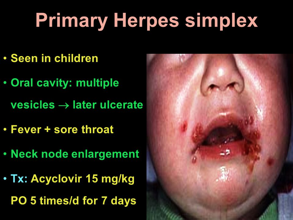 Primary Herpes simplex