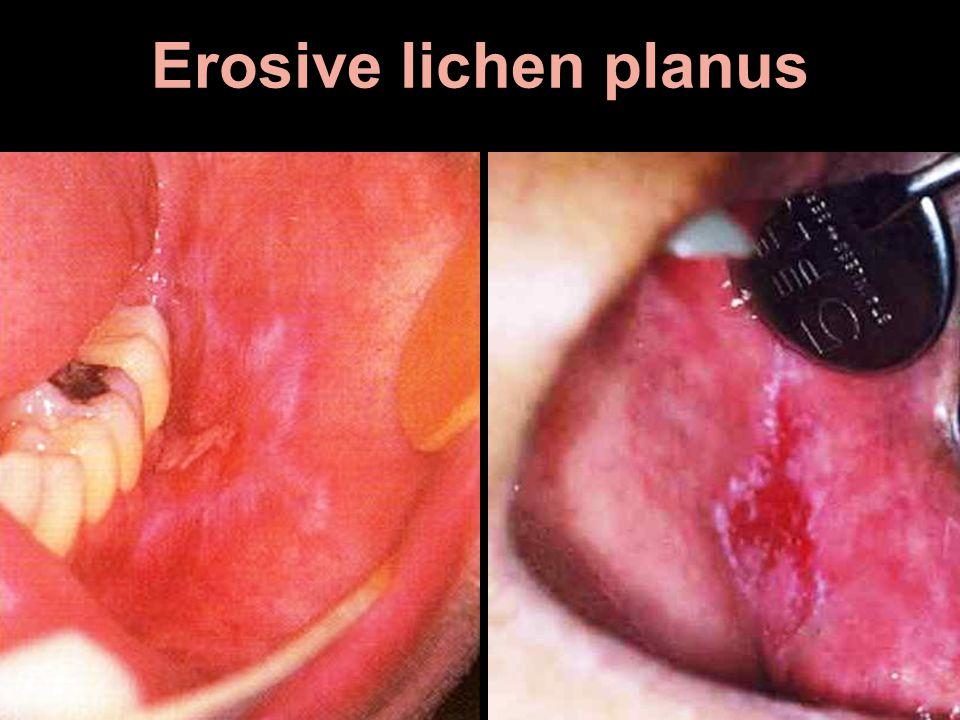 Erosive lichen planus