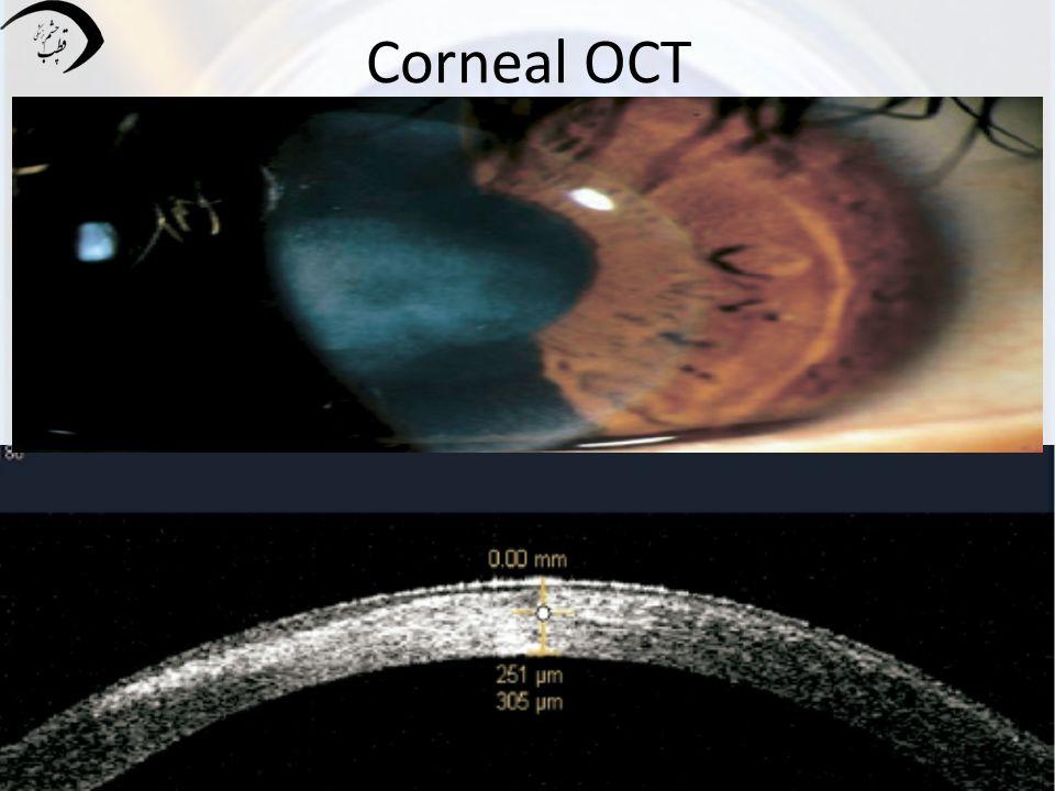 Corneal OCT