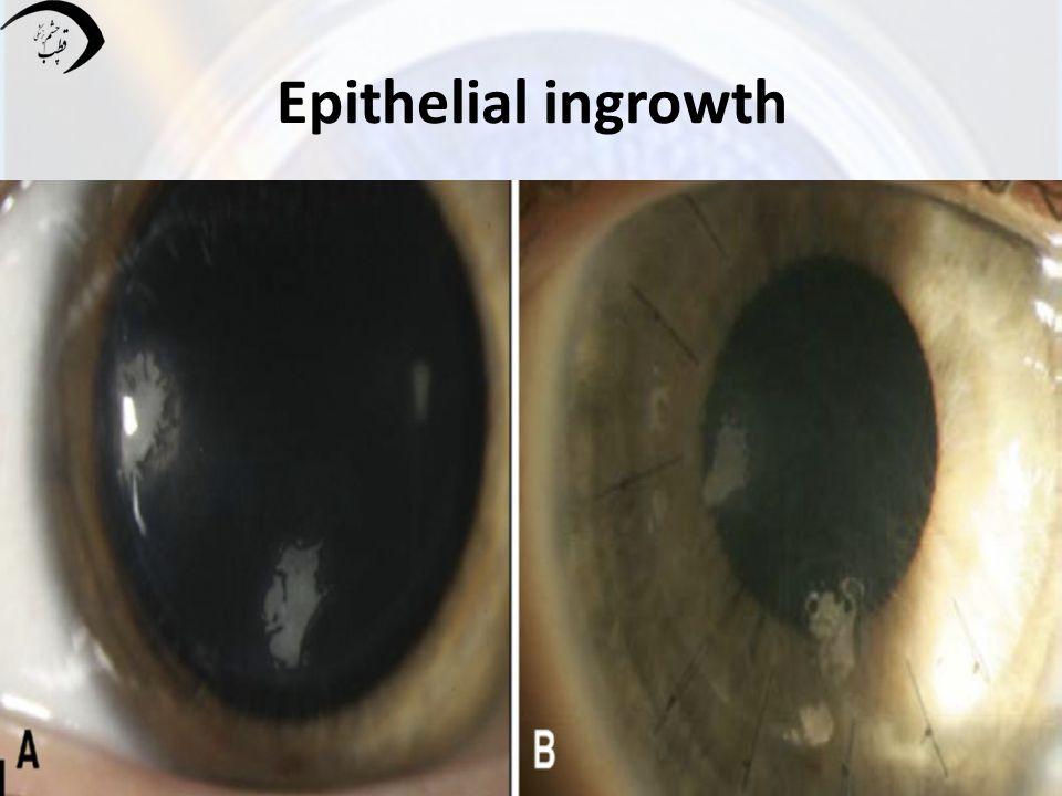 Epithelial ingrowth