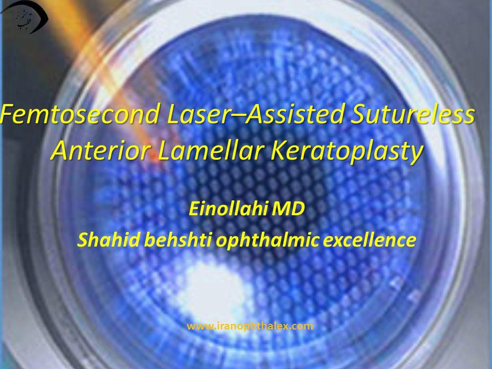 Femtosecond Laser–Assisted Sutureless Anterior Lamellar Keratoplasty