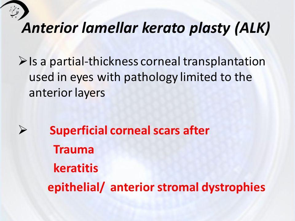 Anterior lamellar kerato plasty (ALK)