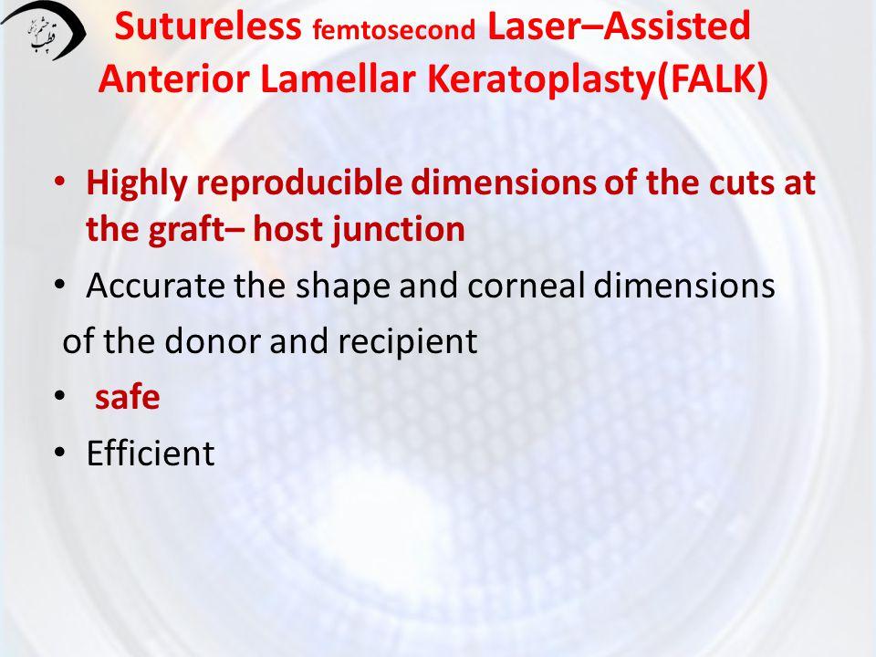 Sutureless femtosecond Laser–Assisted Anterior Lamellar Keratoplasty(FALK)