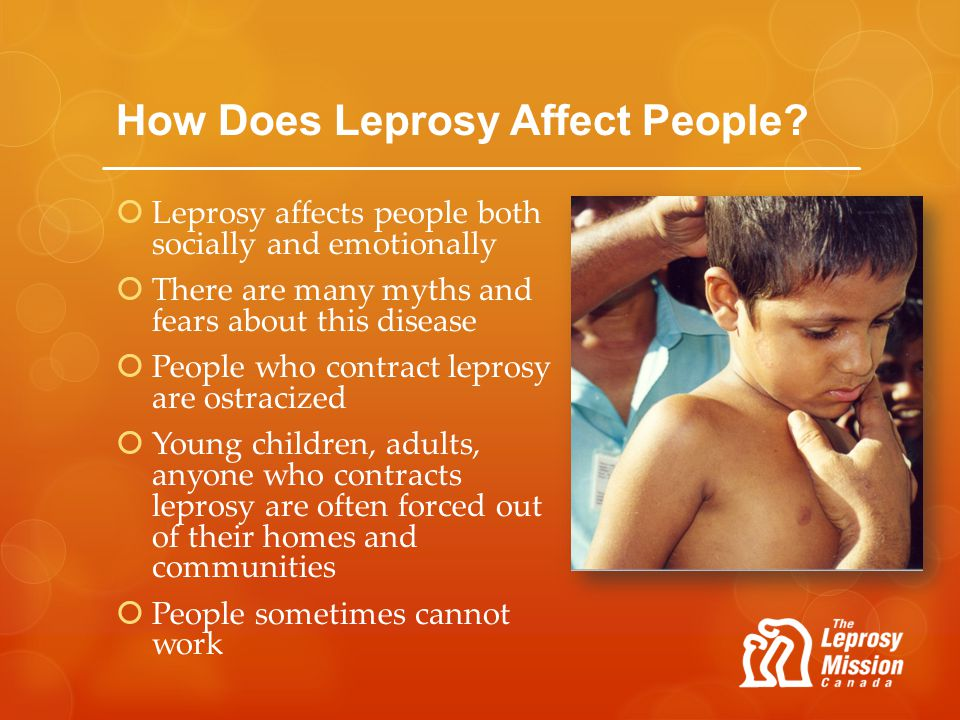 How Does Leprosy Affect People