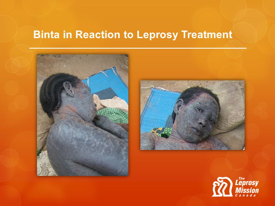 Binta in Reaction to Leprosy Treatment