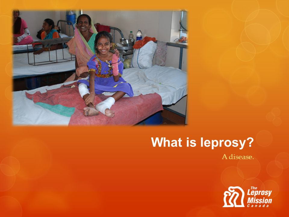What is leprosy A disease.