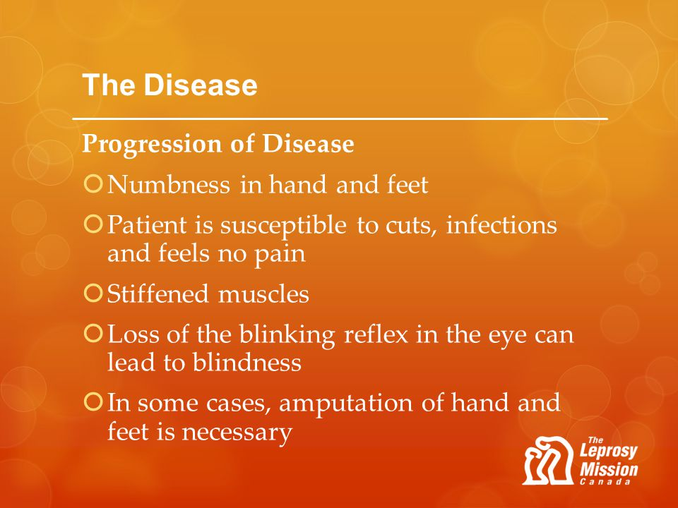 The Disease Progression of Disease Numbness in hand and feet