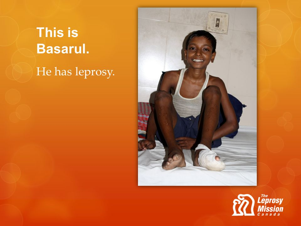 This is Basarul. He has leprosy.
