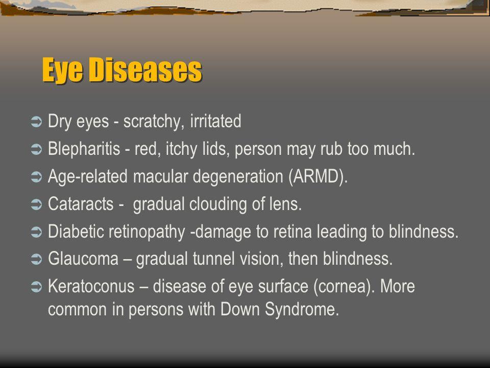 Eye Diseases Dry eyes - scratchy, irritated
